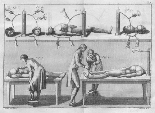 Experiments with cadavers and severed heads - Essai théorique et expérimental sur le galvanisme  1804